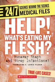 Help! What�s Eating My Flesh?: Runaway Staph and Strep Infections! (24/7: Science Behind the Scenes)