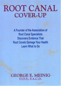 Root Canal Cover Up