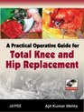 A Practical Operative Guide for Total Knee and Hip Replacement